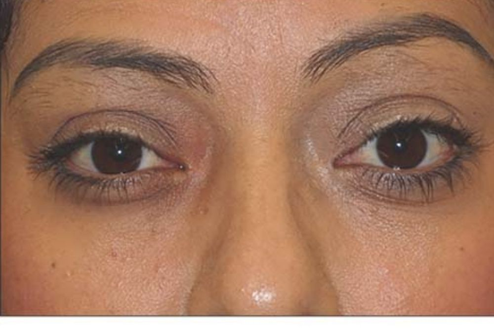 Drugs to Treat Thyroid Eye Disease Without Surgery 3