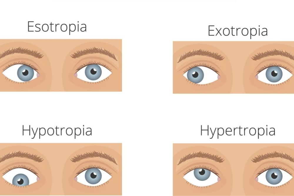 4 different kinds of ocular alignments