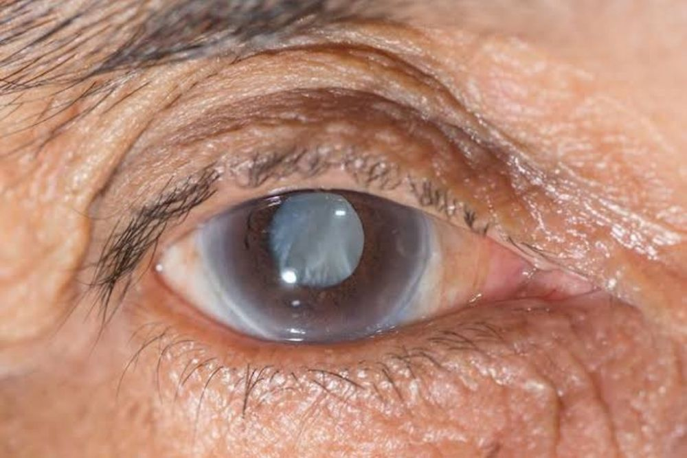 old aged man with glaucoma