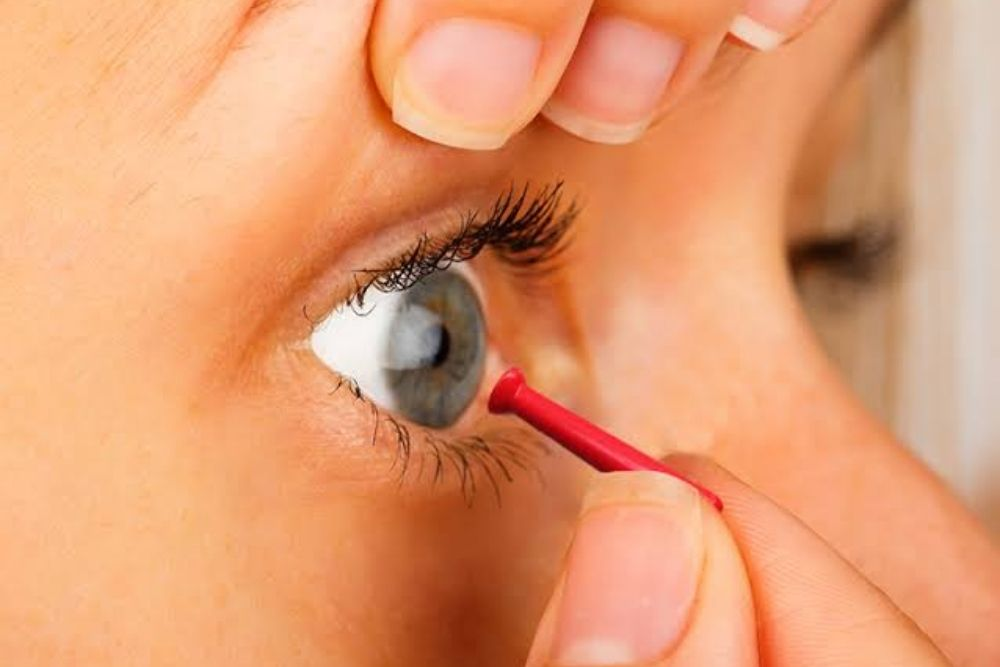 woman using a contact lens remover