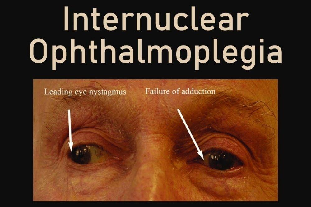 kahinaan ng mga muscles sa mata