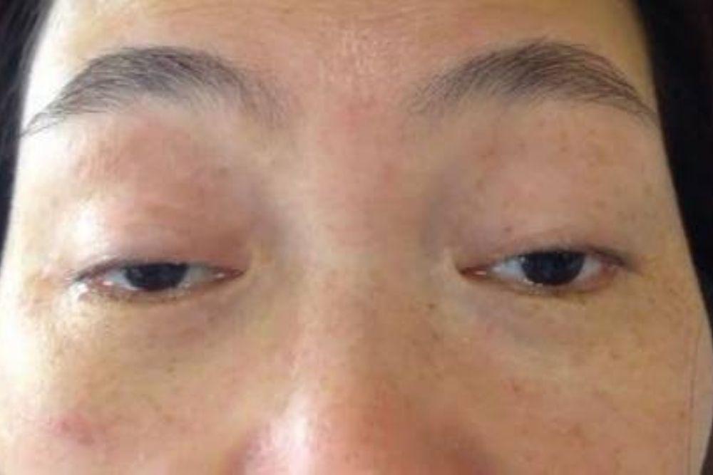 closeup of eye paralysis