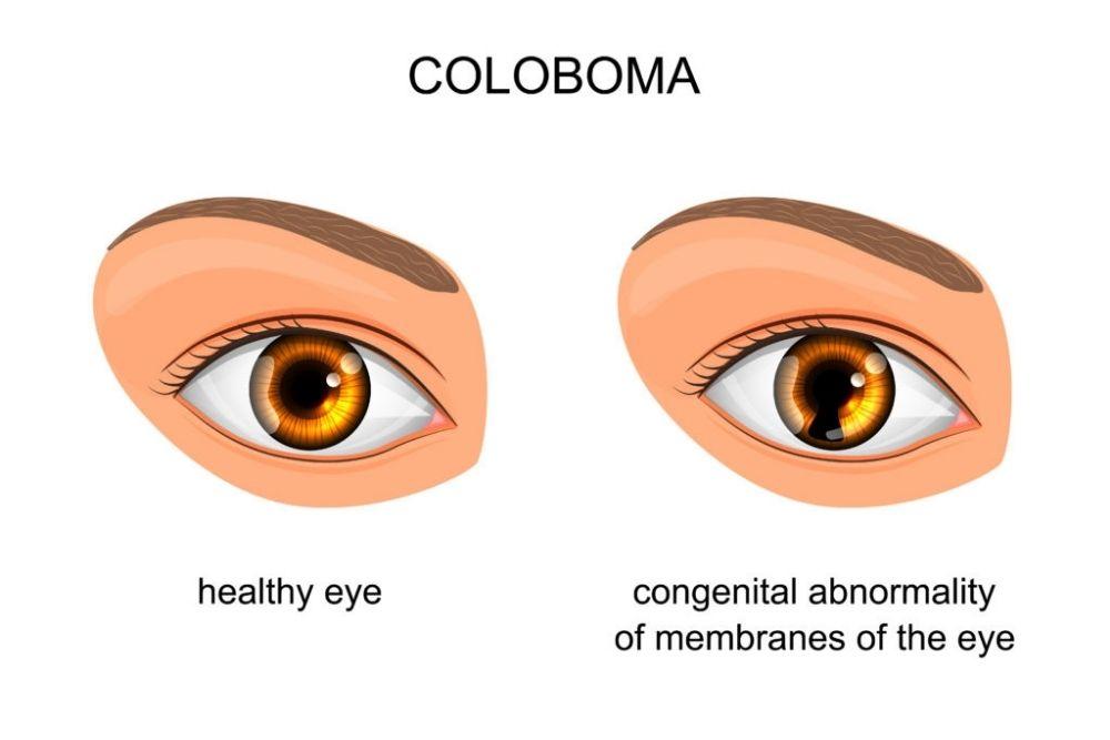 healthy eye vs congenital abnormality of membranes of the eye