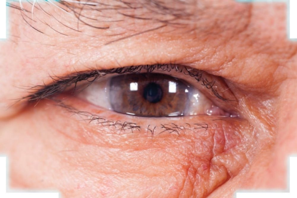 eye of middle aged man