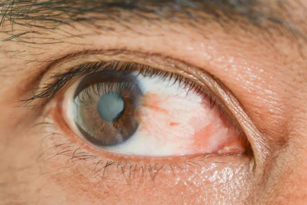 reddish eye