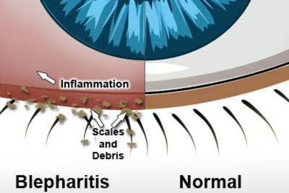 can poor eye hygiene cause blepharitis