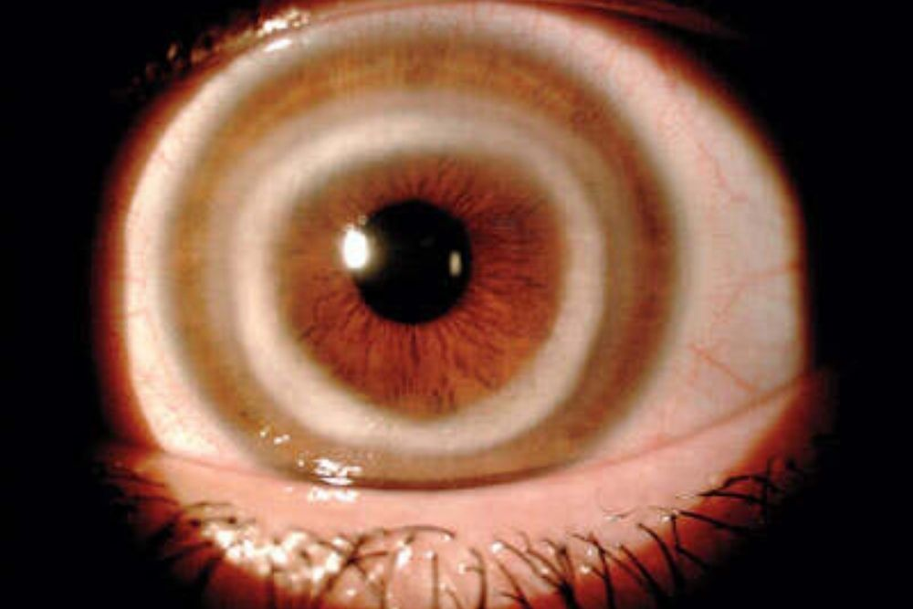 white ring sa cornea