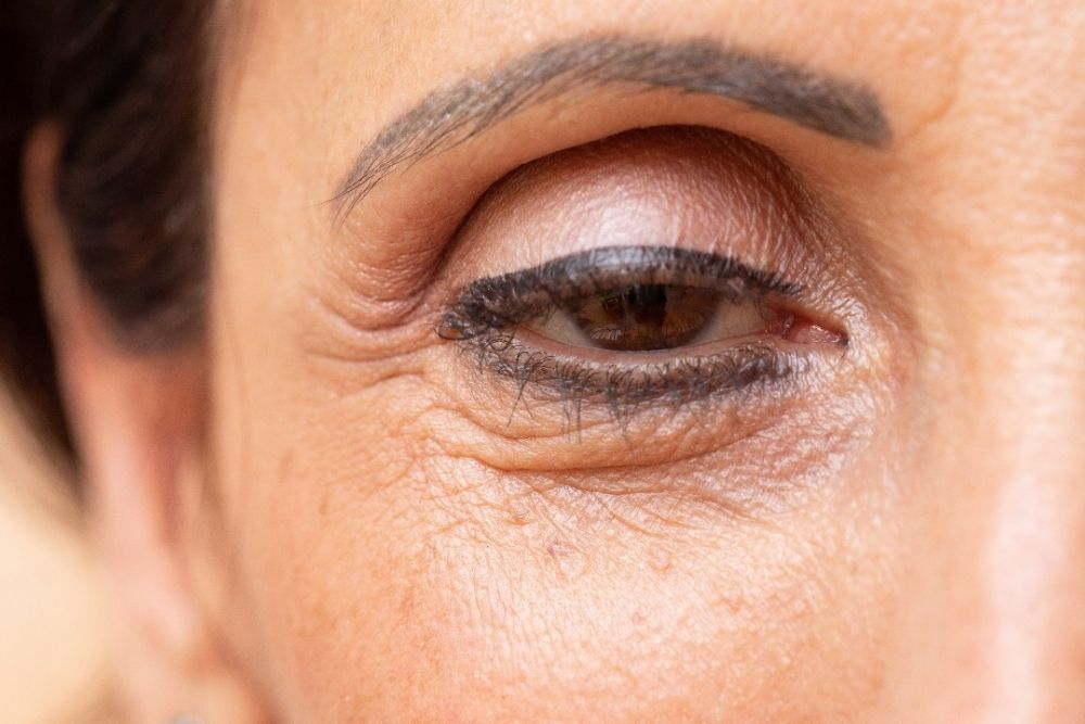 eye of a middle aged woman