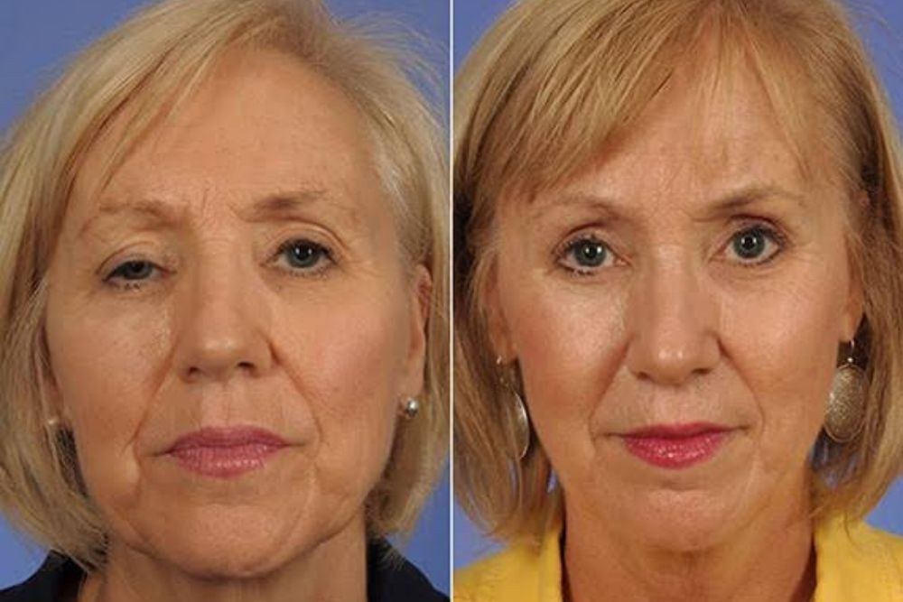 before and after of a ptosis surgery