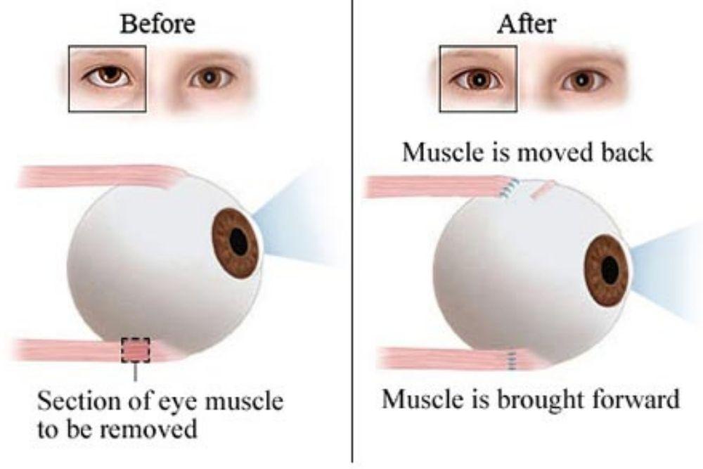 strabismus surgery diagram