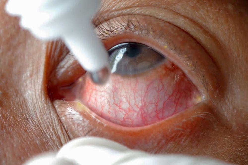 eye drops on an eye