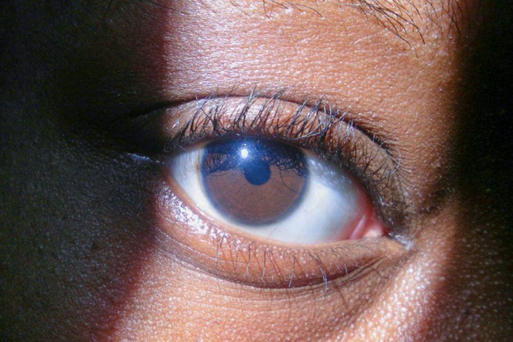 sunlight on the eye