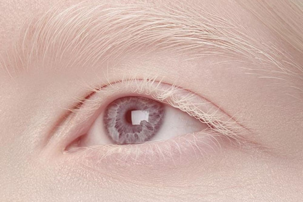 does albinism cause vision problems