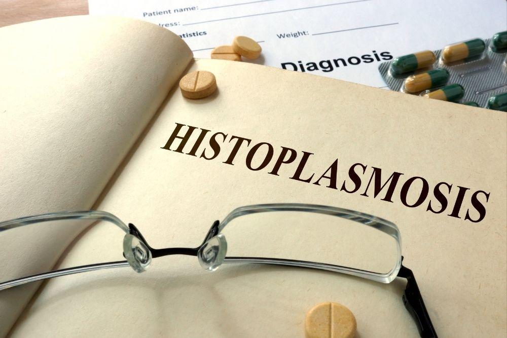 histoplasmosis ano ang dapat mong malaman
