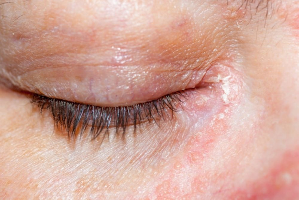 how to deal with psoriasis around the eyes