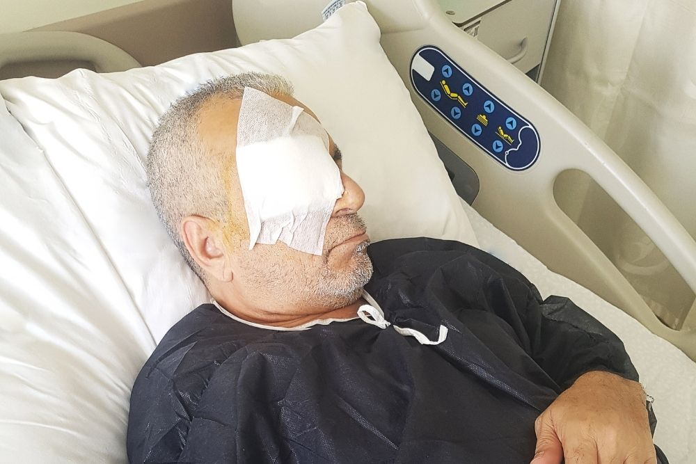 is phantom eye syndrome after surgery to remove eye common