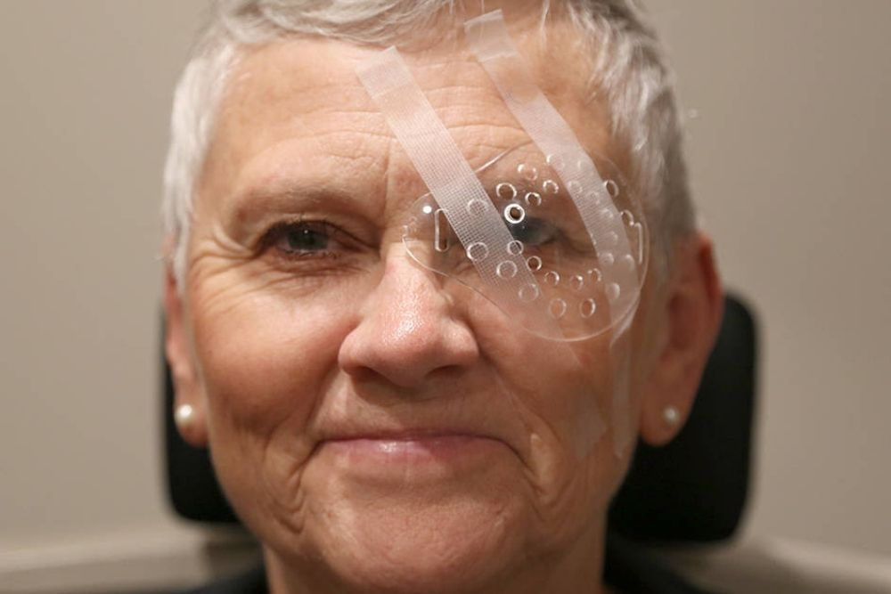 effect of cataract surgery on the mortality risk of patients