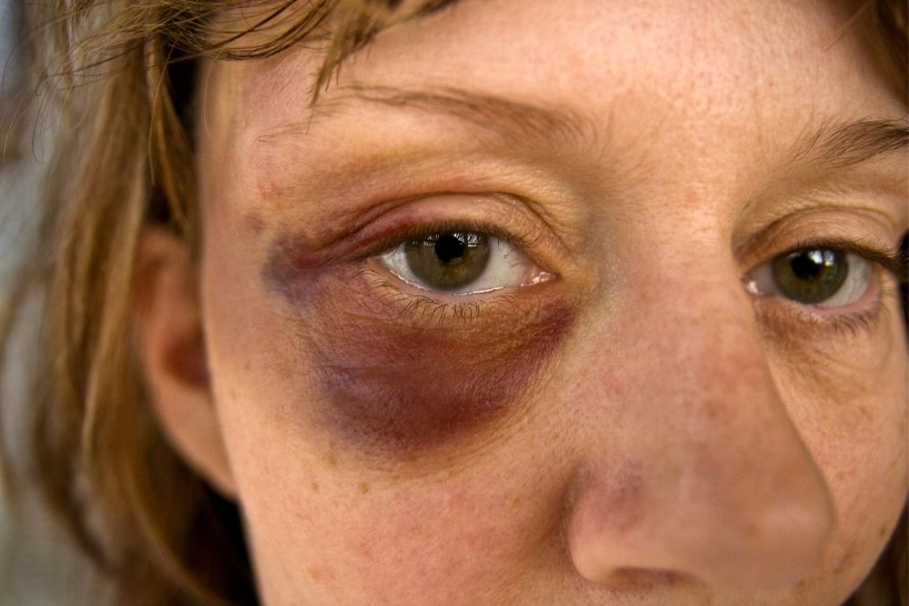 things you should know about black eye