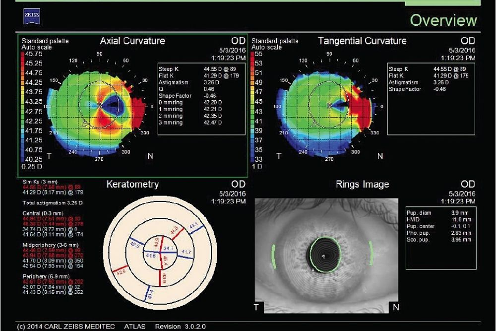 what is corneal topography