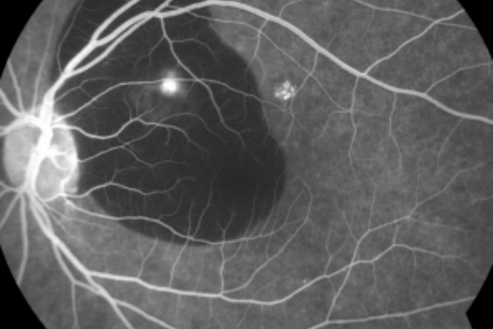 what is fluorescein angiography