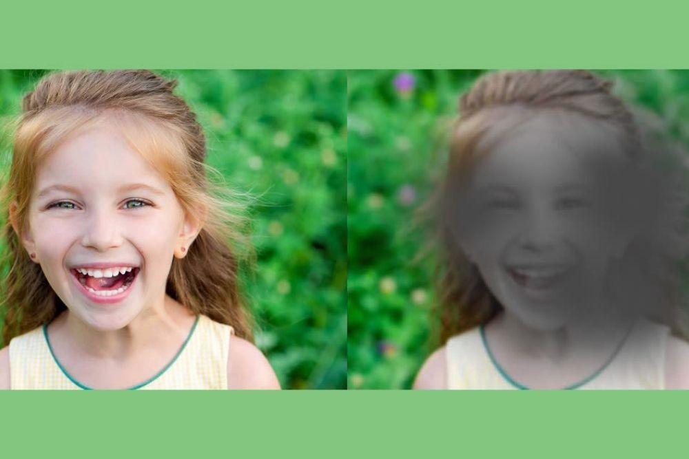 what is juvenile macular dystrophy