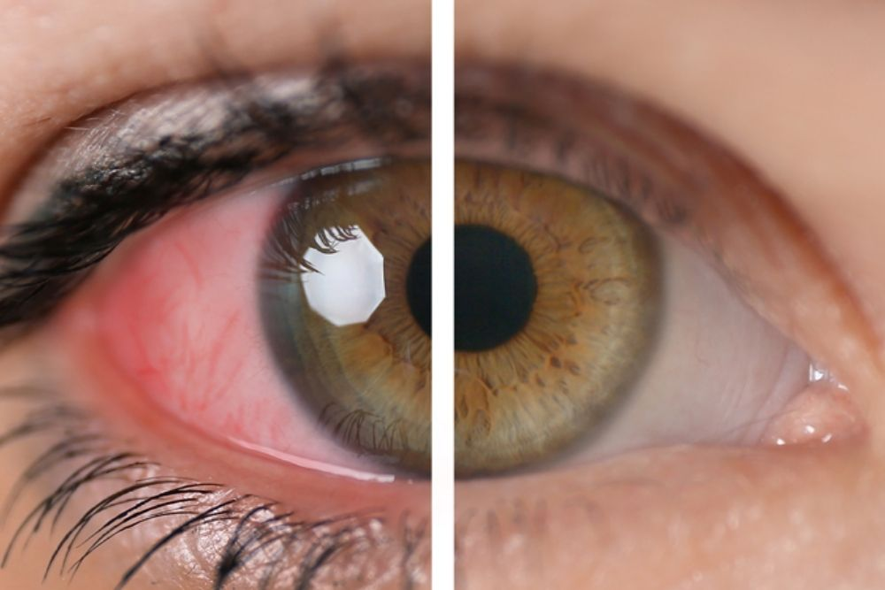 what is ocular sarcoidosis