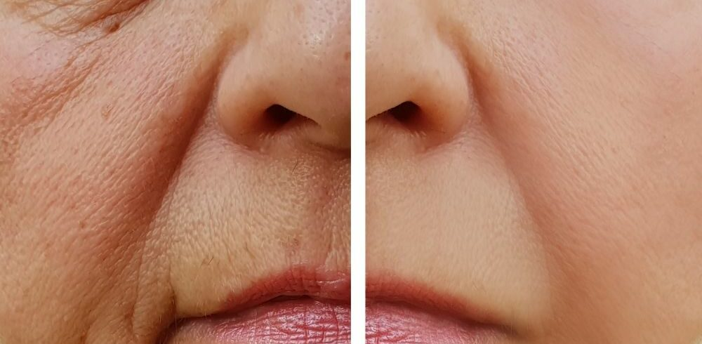botulinum toxin (botox) for wrinkles on the face