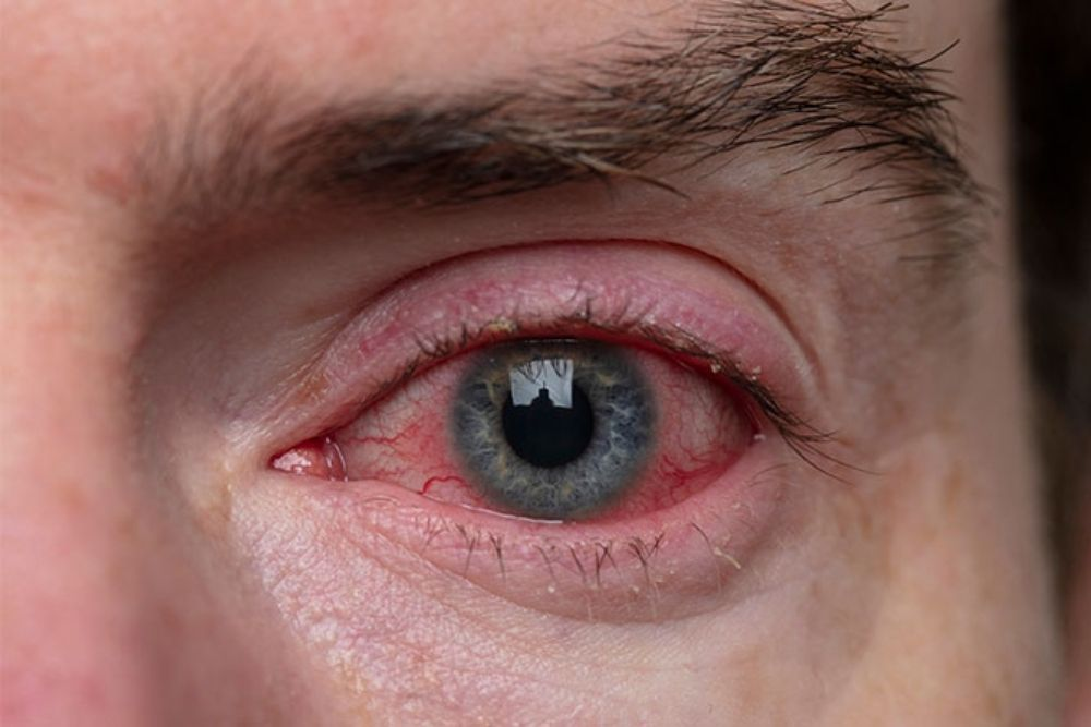 causes of red rings around the eyes