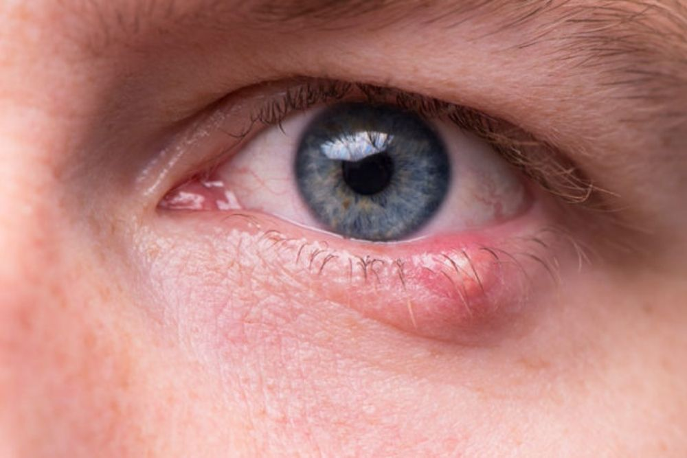 causes of white bumps under the eyes