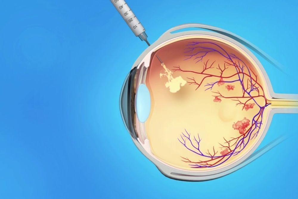 central retinal vein occlusion (crvo)