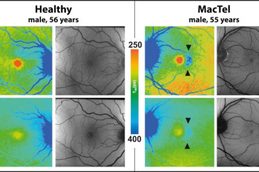 pagsusuri at paggamot ng macular telangiectasia