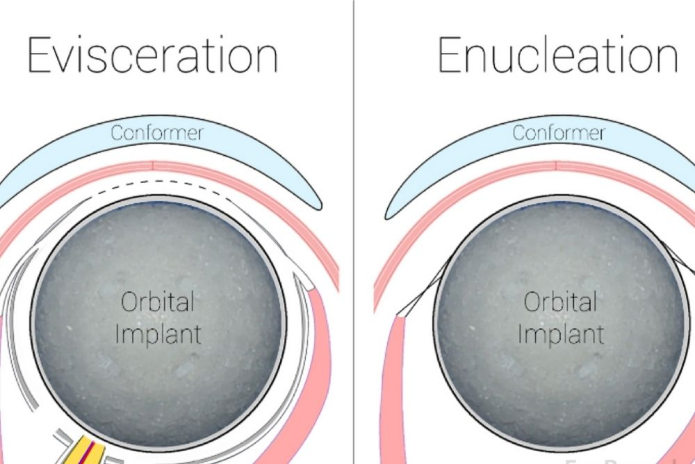enucleation and evisceration