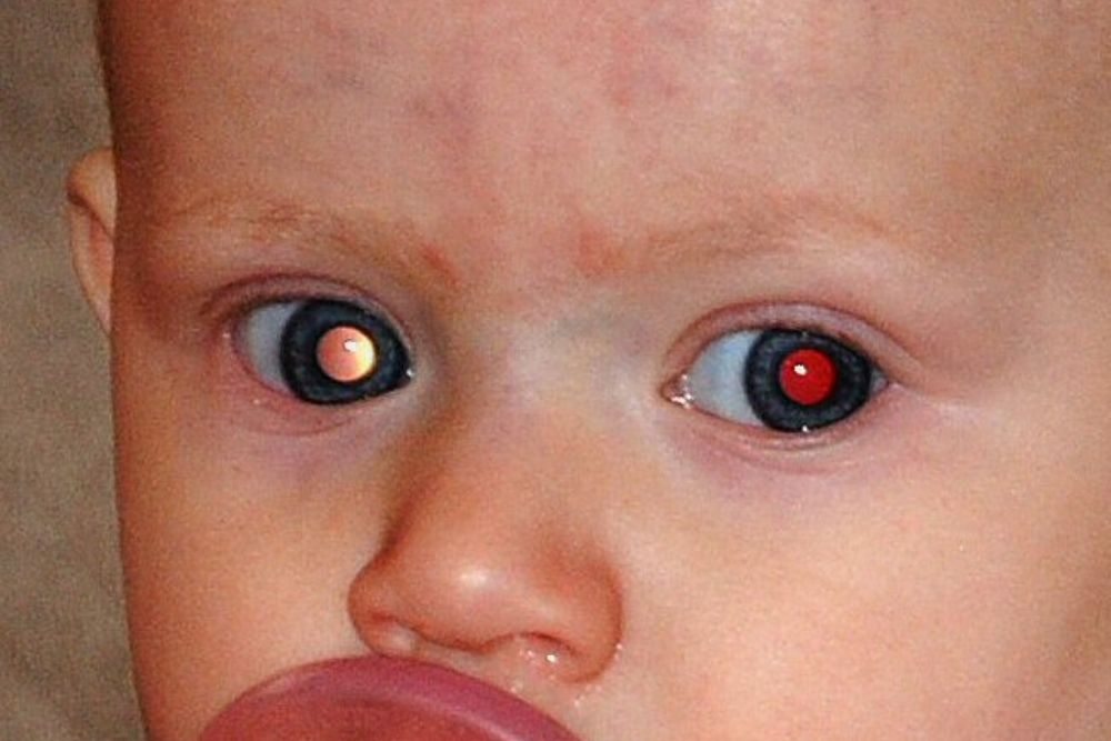 eye disorders associated with abnormal eye reflection on camera
