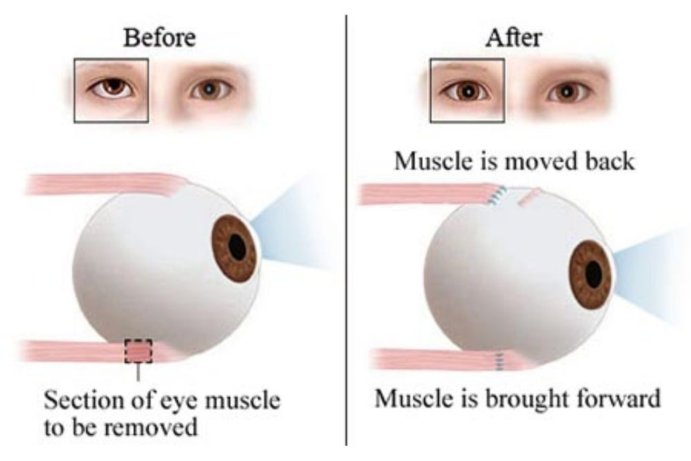 facts about lazy eye surgery