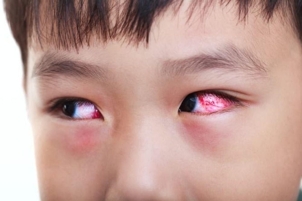 juvenile idiopathic arthritis uveitis