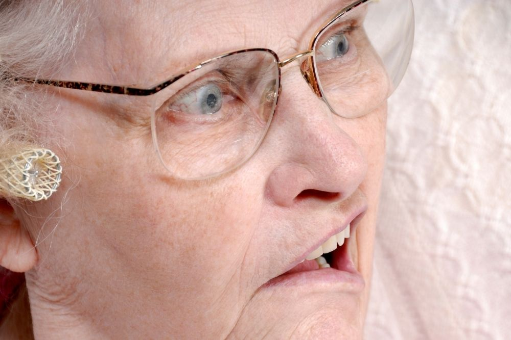 the impact of a stroke on vision