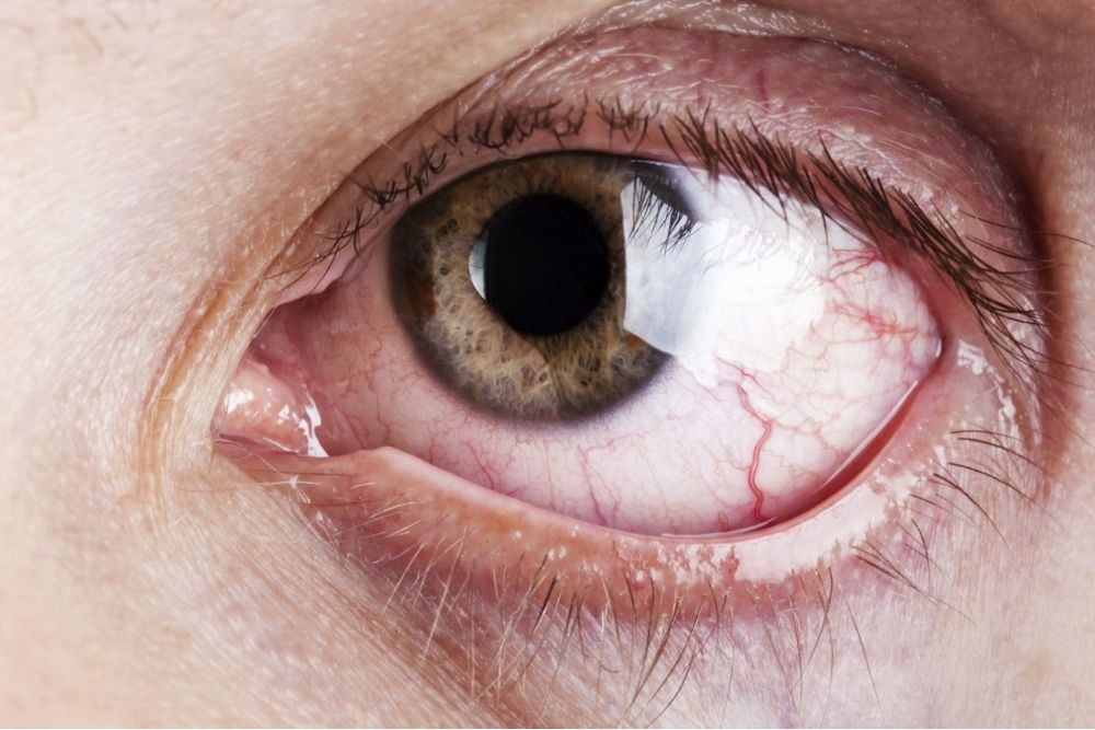 what is corneal laceration