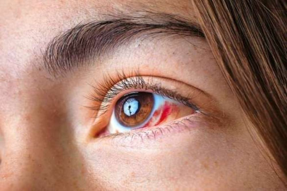 what is eye cancer