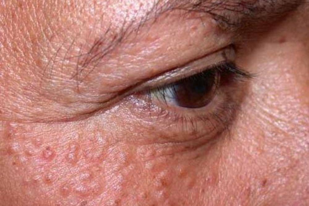 white chicken skin-like bumps under the eyes