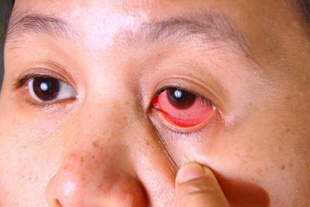 ano ang acanthamoeba keratitis