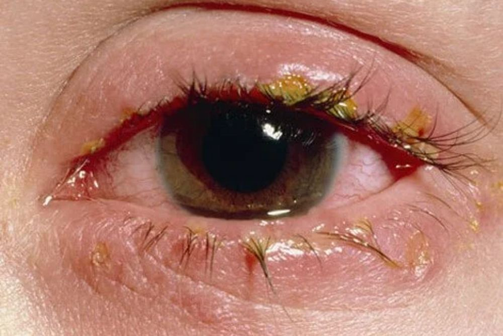 difference between allergies and pink eye
