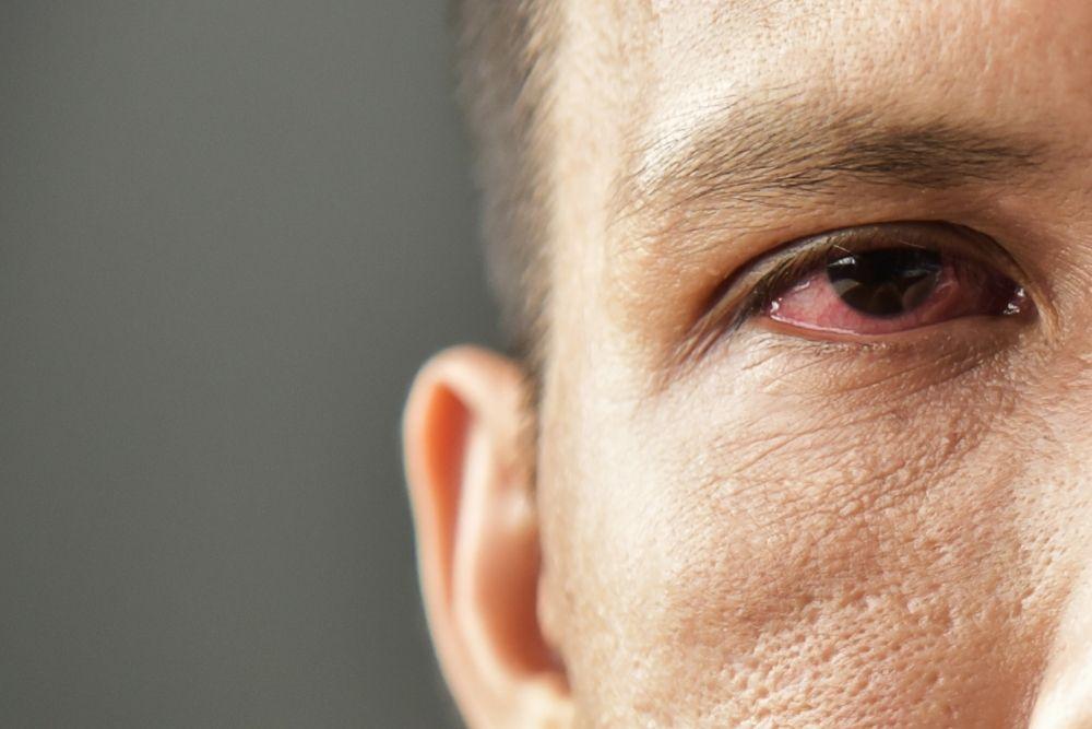 neuropathic corneal pain